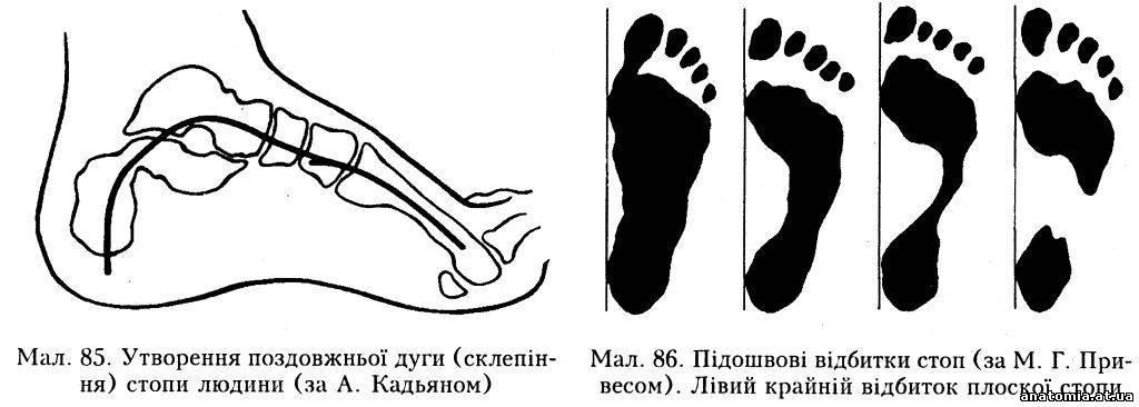 плоскостопість хвороба